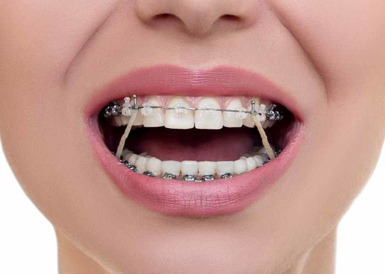 elastics-in-orthodontic-treatment